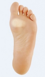 How to heal a blister ?